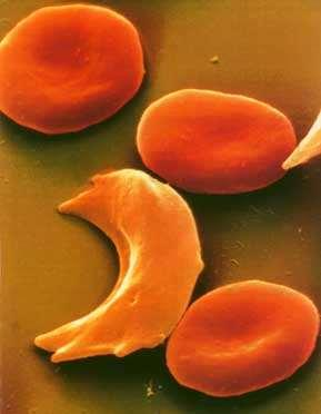 Sickle-Cell Disease An example of codominance in humans Common in African Americans and Americans with ancestry near the Mediterranean Sea Homozygous