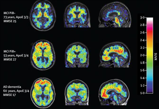 Fibrillar amyloid plaques Measured with PiB(radioactive molecule that binds to amyloid beta peptide) PET scans