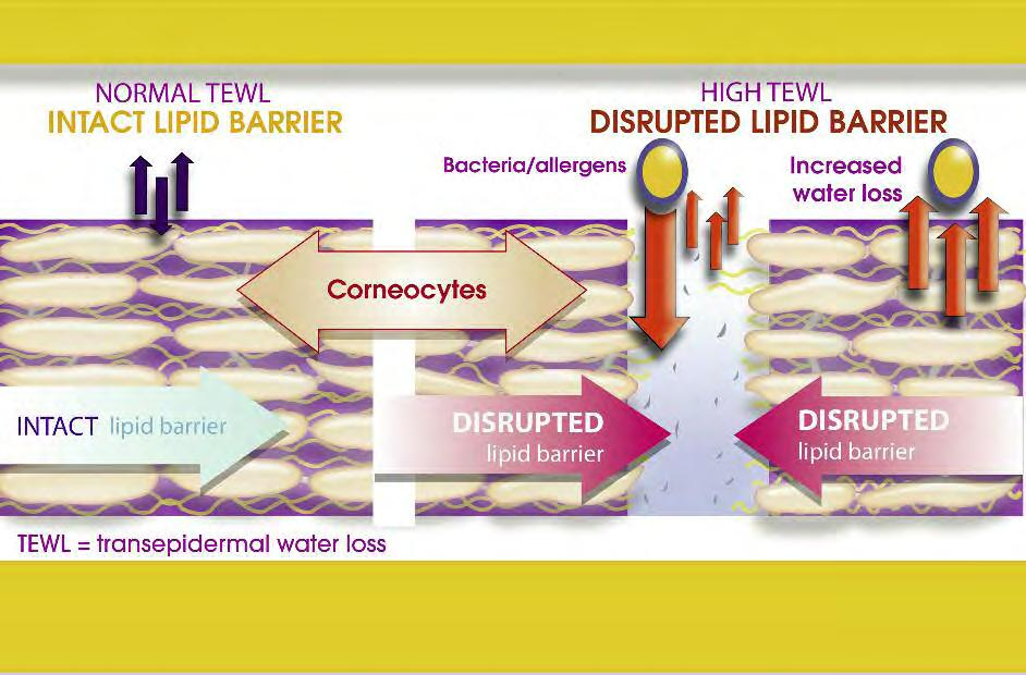Abnormalities or disruptions in the lipid barrier can lead to greater transepidermal water loss (3). How to restore skin balance and well-being? (1) Farage MA & Maibach HI. Contact Dermatitis.