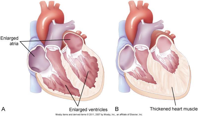 Fig. 35-1. A, Dilated heart chambers.