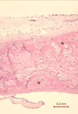 Some collagen matrix (C) remained at the centre of the bony