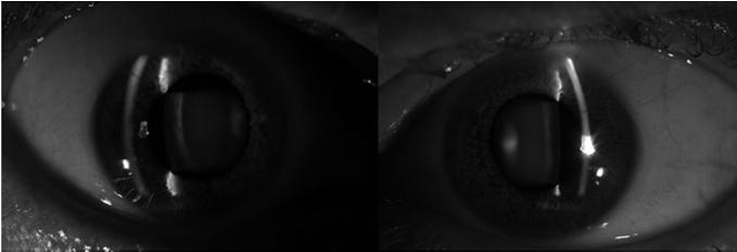 cataract Stage 3 DLS Stage 3 DLS: Densitometry