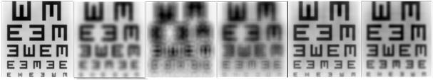 10 Far Near 20/25 20/40 Tolerance to Uncorrected Astigmatism (IC-8 Eyes vs. Monofocal Eyes) Cylinder defocus was done in 0.5 D steps, starting from manifest refraction.
