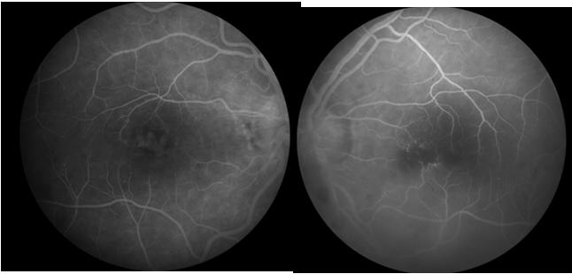 presents with bilateral panuveitis Hx of poor vision OU, recurrent red eyes and light sensitivity past 3 years Hx IVDU on