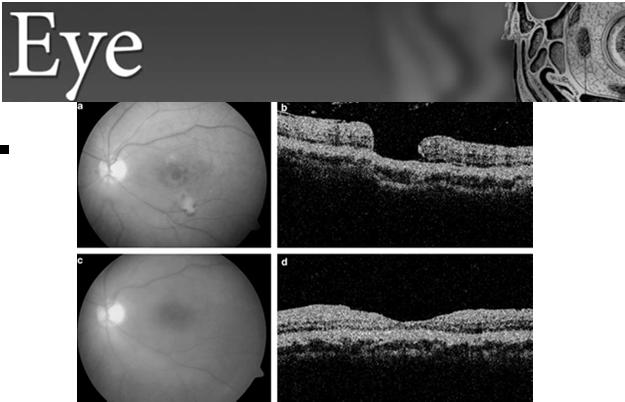 peel and gas or silicone tamponade Spontaneous closure is less common Secondary hole closure rate has lower rate Due to larger hole size Decreased retinal extensibility after retinal inflammation