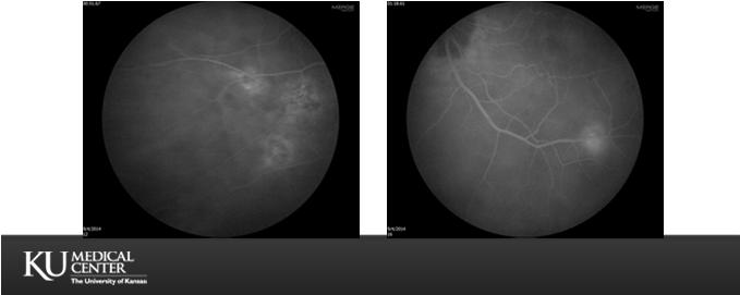 BEFORE &AFTER SI OIL References Gass JD. Idiopathic senile macular hole: Its early stages and pathogenesis.