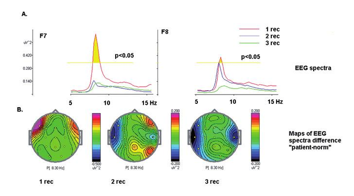 Table 2. Behavioral data Fig. 6. EEG spectra in the GO/NOGO task at the three recordings A. EEG spectra at F7 and F8 electrodes, first recording red, second recording blue, third recording green.
