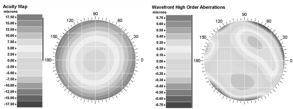 The WaveScan System can also measure complex focusing errors. On the left in figure 4 is a map of all wavefront errors and on the right is a map showing just the complex errors.