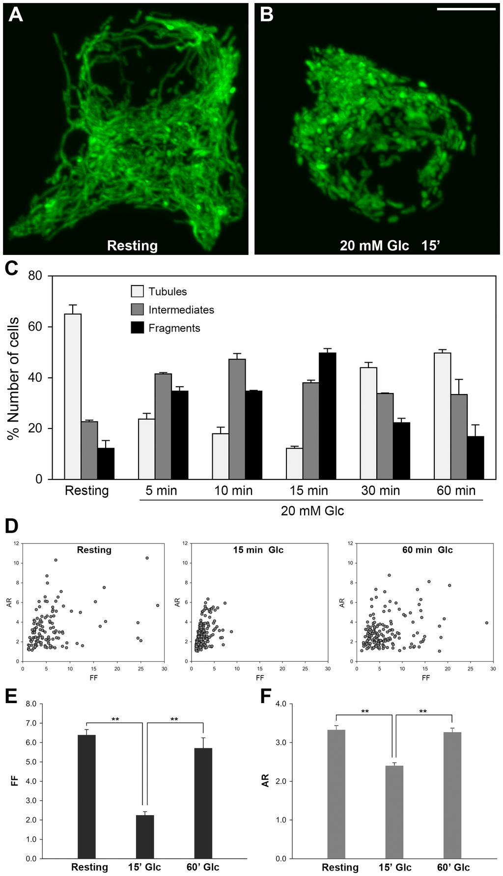 Mitochondrial Fission Regulates Insulin Secretion Figure 2. Glucose stimulation of INS-1E cells induces reversible shortening of mitochondrial tubules.