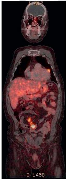 Detection of primary tumor and rare cardiac metastases 41 patients + 4 cases (own series) Mean age at Dx 57.