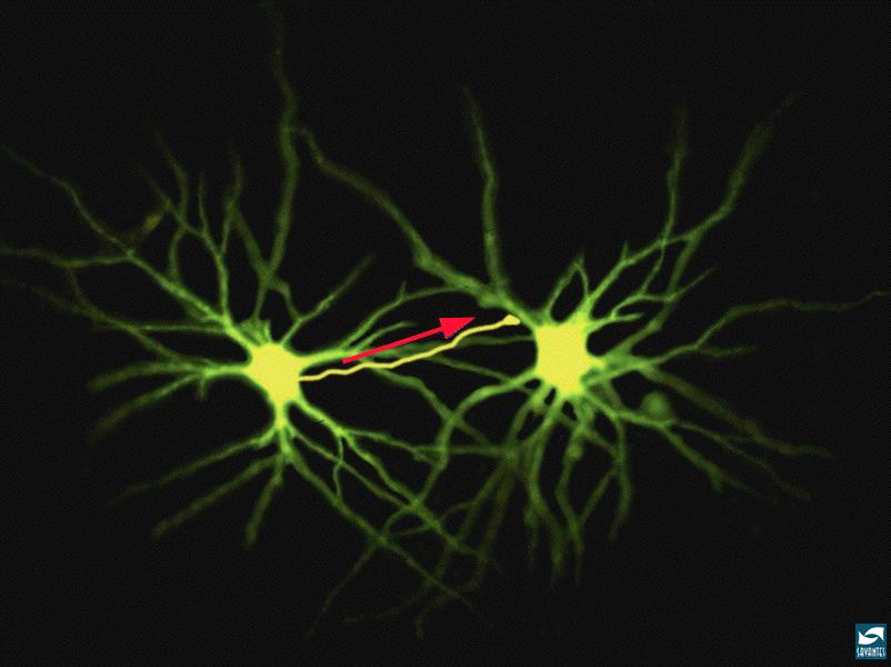 The Dendrites of the Neuron The Dendrites of a neuron connect with the
