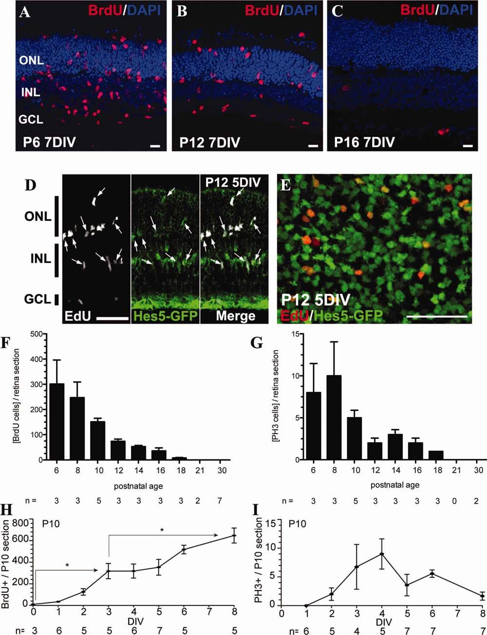 1582 UEKI ET AL. Fig. 1. Stimulation of M uller glial proliferation in retinal explants ex vivo is age-dependent.