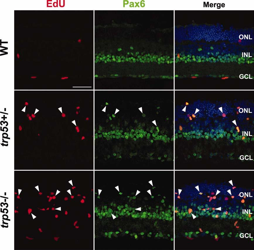 1584 UEKI ET AL. Fig. 3. Loss of trp53 stimulates cell proliferation in adult retinal explants with EGF treatment for 5 days.