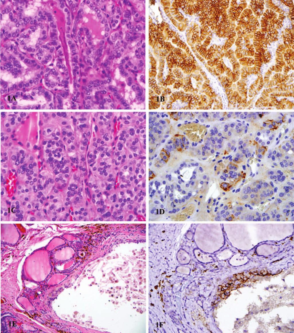 Figure 1. A through F, Trophoblastic cell surface antigen 2 (TROP2) staining pattern in thyroid neoplasm and lesions. A, Papillary thyroid carcinoma (PTC), follicular variant.
