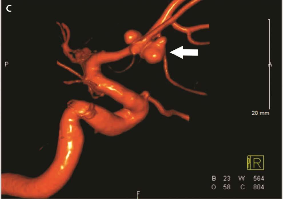 multilobed and wide-neck Acomm aneurysm After discussion with
