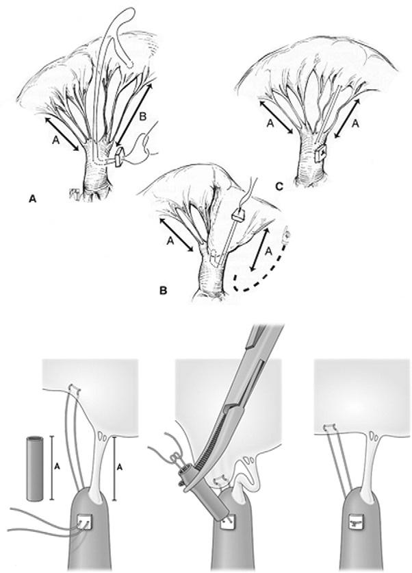 78 R.G. Ohye Figure 6 Two techniques for creation of artificial chordae. (Modified and reprinted with permission from Pediatric Cardiac Surgery, Mavourdis C, Backer CL. 2003. Figure 32-14, p.