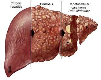 Elevated serum ALT(SGPT) level are found in hepatitis, cirrhosis, and