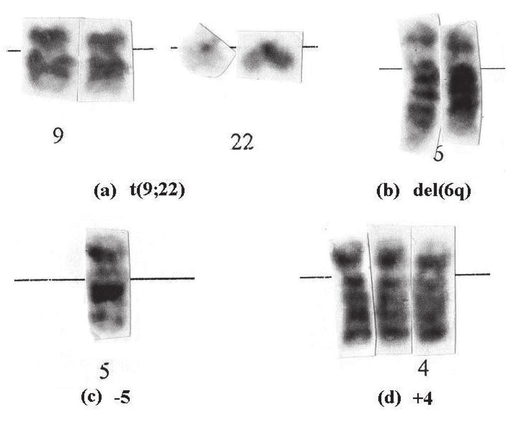 71 Structural Abnormalities Include Translocations Deletions Inversions And Insertions Translocation T