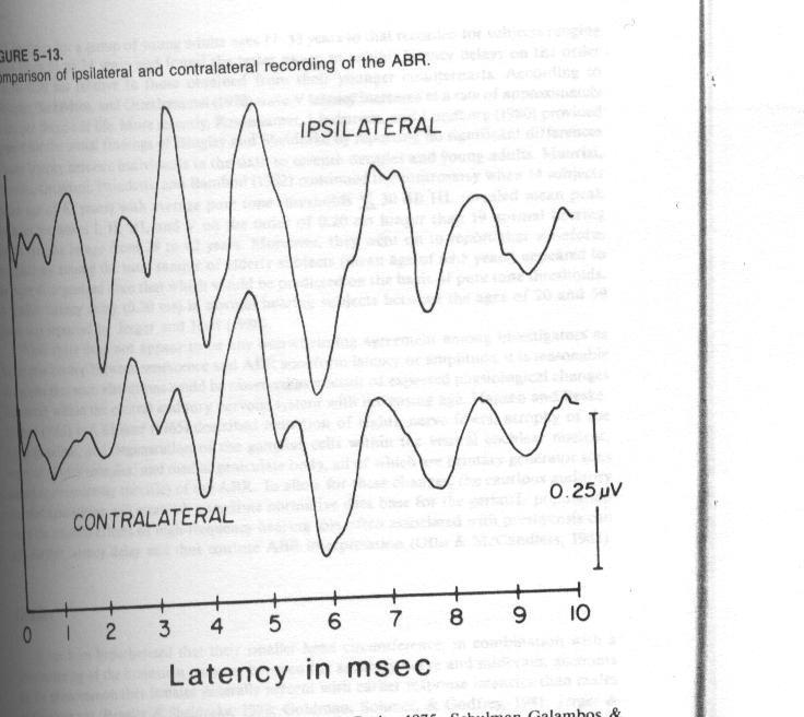 ABR Indices in Retro-cochlear Lesions I. Latency Indices 1- Interpeak latencies (IPL): The most powerful index. I-V IPL is usually 4.0 msec (sd 0.2 msec). I-III IPL is slightly above 2.