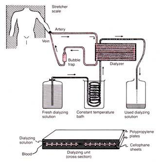 Kidney Dialysis Regulation of Renal