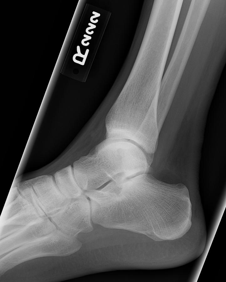 Ankle Fractures And The Ottawa Ankle Rules Ithan D Peltan Ms Iv