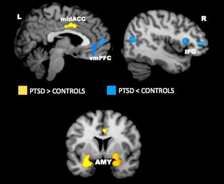 Functional Neuroimaging in PTSD: Negative Emotional States Hyperactivation Hypoactivation AMY: Amygdala IFG: