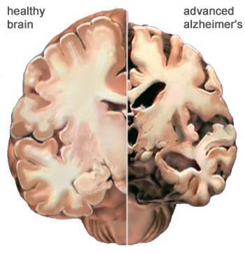The Alzheimer s Brain: Gross Anatomical Changes The cortex shrivels up, damaging