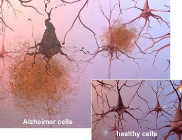 The Alzheimer s Brain: Microscopic Changes Alzheimer's tissue has many fewer