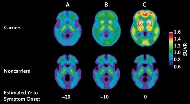 Predicting Alzheimer's Disease: PET Biomarkers Brain scans show evidence of Alzheimer s disease 20 years before symptoms arise (far left), 10 years before (middle), and after the onset of symptoms