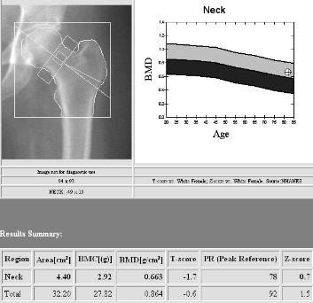 jsp 25 26 Software that can be added to DXA Evaluates bone microarchitecture Quantifies trabecular bone texture Can be used with FRAX