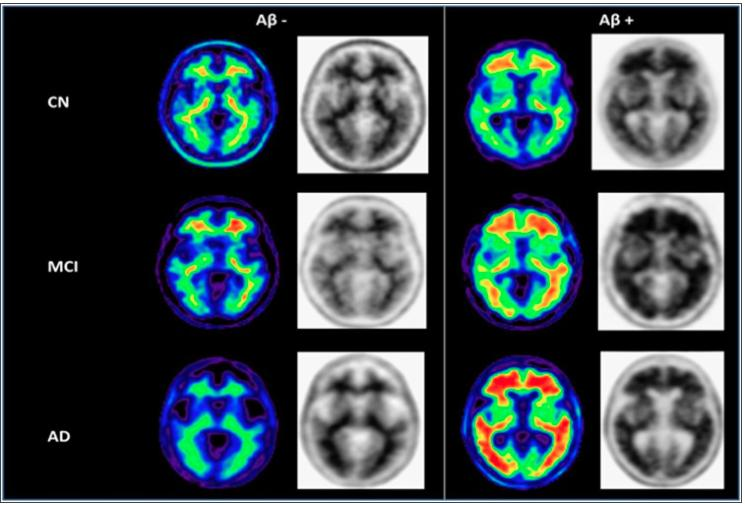 Amyloid Imaging in AD and MCI Florbetapir PET Amyloid Positivity by Diagnosis