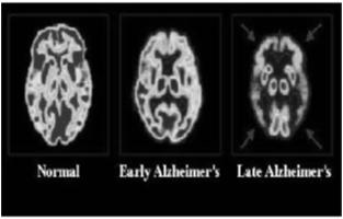 AD is a Neurodegenerative Disease as Seen in the PET Scan and is Characterized by Amyloid Plaques and Neurofibrillary Tangles Mild Cognitive Impairment or Mild Neurocognitive Disorder: Implications