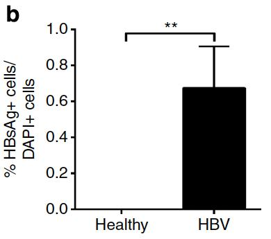 immune system is exposed to HBV before birth No longer any acute