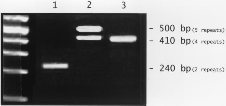 FIGURE 1 Photograph of a 3% agarose gel used to resolve the alleles 1, 2, and 3 of IL-1 RA. Lane 1: the homozygous allele 2 pattern (IL-1 RA 2/2 ).