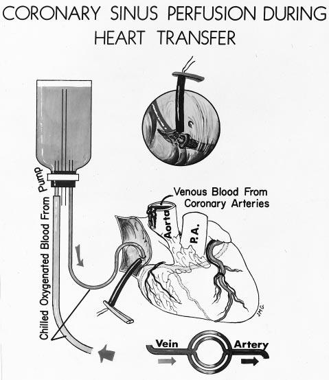 pacemaker applied. Fig 7.