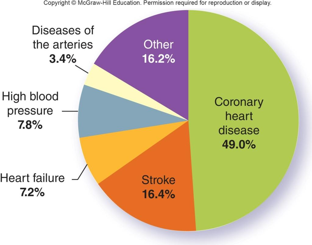 CVD is a general term for diseases that include heart attack,