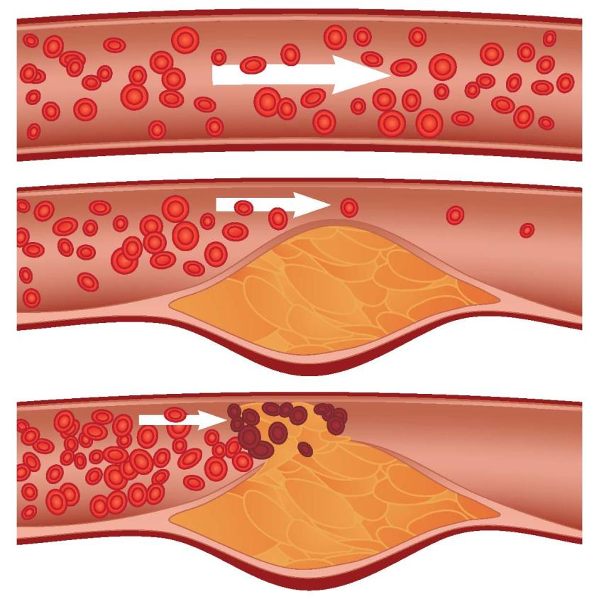 Atherosclerosis Involves a thickening or