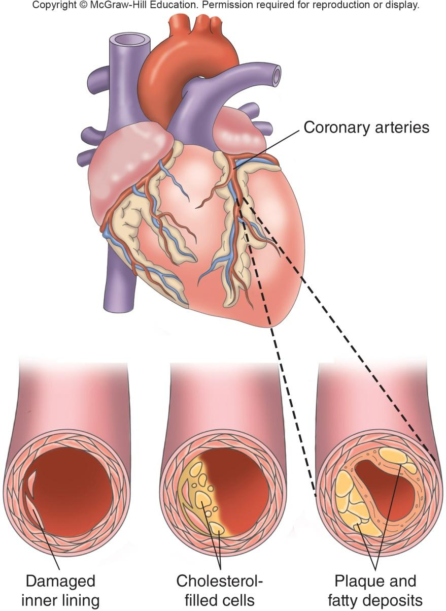 Atherosclerosis 1) Damage to the inner lining of vessels and the formation of a fatty streak 2) Accumulation of lipoproteins within the walls of an artery 3) Once an injury exists on the artery,