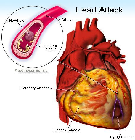 Coronary Heart Disease and Heart Attack Ø Coronary heart disease (CHD): atherosclerosis of the coronary arteries, which can result