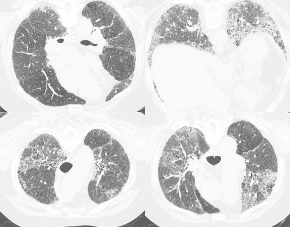 Significance of granulomatous inflammation in usual interstitial pneumonia 161 Fig. 1. High Resolution chest CT for case 1.