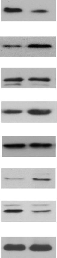 transcription with GAPDH for normalization. n ¼ 6, male for each group. (d) Increased IKK-NF-kB activities in SENP1- PATs. A representative western blot was from and SENP1- mice at the age of 7 weeks.