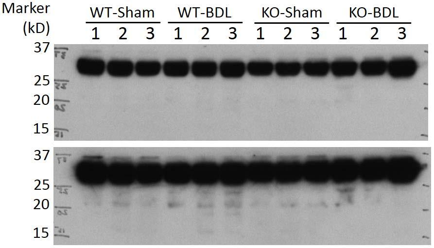 (A) reduced liver Ck19 and Ntcp protein expression in Ccl2 KO BDL mice than in WT and mice;