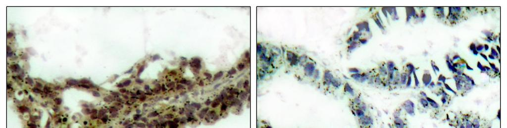 Catalog Number: E011055-1, E011055-2 Amount: Form of Antibody: Storage/Stability: Immunogen: Purification: Specificity/Sensitivity: Reactivity: 50μg/50μl, 100μg/100μl Rabbit IgG in phosphate buffered