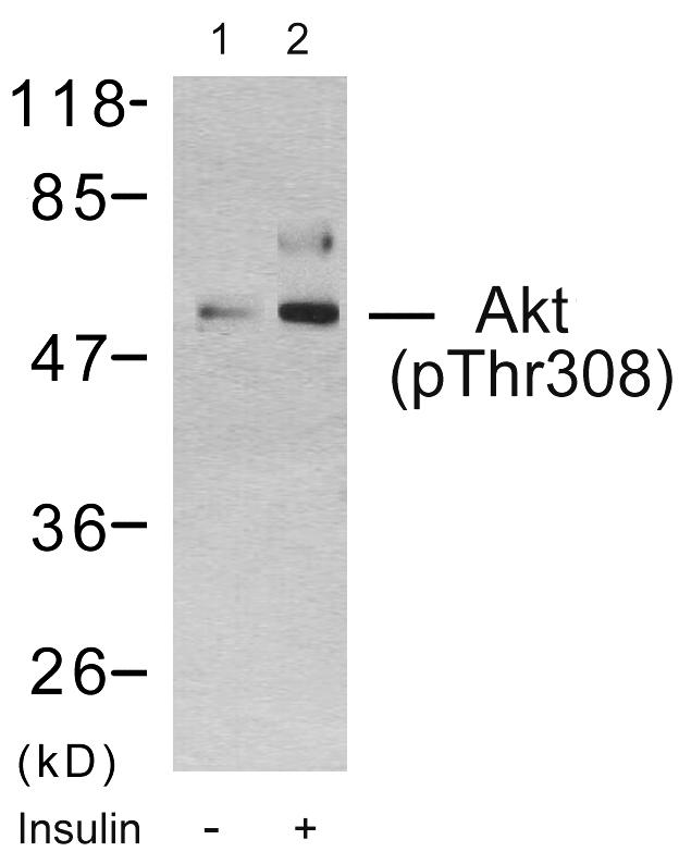 The antibody against non-phosphopeptide was removed by chromatogramphy using non-phosphopeptide corresponding to the phosphorylation site.