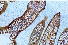 background & IVD compliant Specific and intense staining DAB visualization Can be used for IHC and ISH Multi-link: detects both mouse and