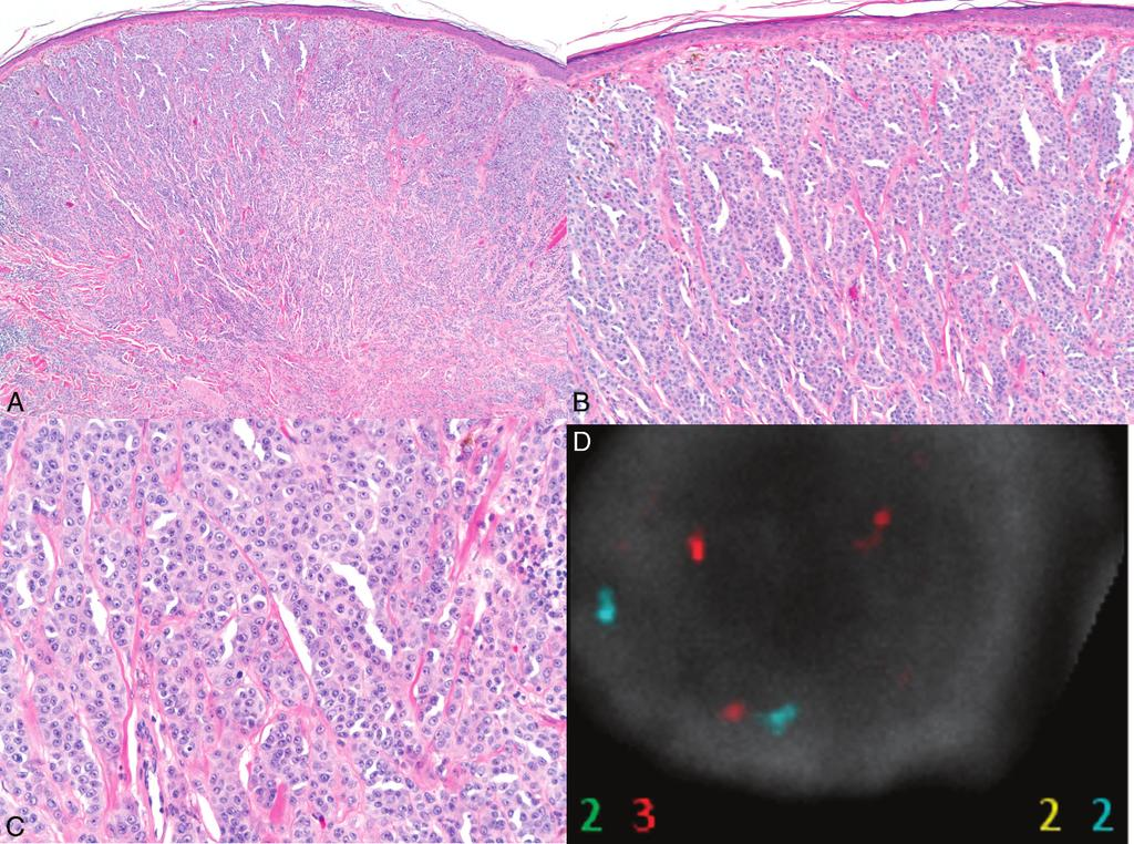 Figure 5. A C, A recurrent, pigmented lesion from the back of 59-year-old woman, showing abnormal fluorescence in situ hybridization (FISH) test results.