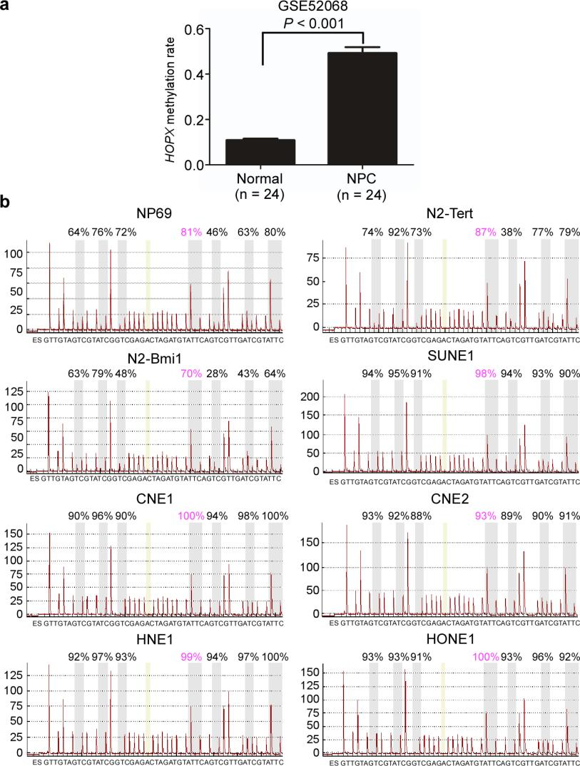 Supplementary Figure 1. HOPX is hypermethylated in NPC. (a) Methylation levels of HOPX in Normal (n = 24) and NPC (n = 24) tissues from the genome-wide methylation microarray data. Mean ± s.d.; Student s t-tests.