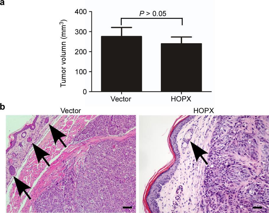 Supplementary Figure 11. Restoring HOPX expression inhibits NPC cell aggressiveness in vivo. (a) Quantification of the average volumes of the primary foot pad tumors. Mean ± s.d.; P > 0.