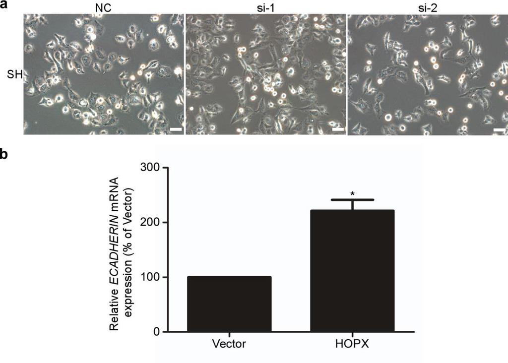 Supplementary Figure 6. HOPX partially inhibits EMT in NPC cells. (a) Phase contrast images (200 ) of SH cells which were transfected with the control NC or HOPX-siRNAs (si-1 and si-2).