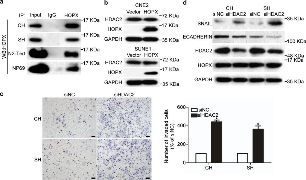 Supplementary Figure 8. Silencing HDAC2 reverses the inhibitory effects of HOPX on invasiveness and EMT in NPC. (a) IP assay using anti-hopx antibody was performed to pull down HOPX.